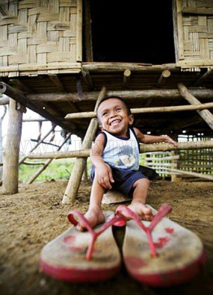 Junrey Balawing - World's Smallest Man