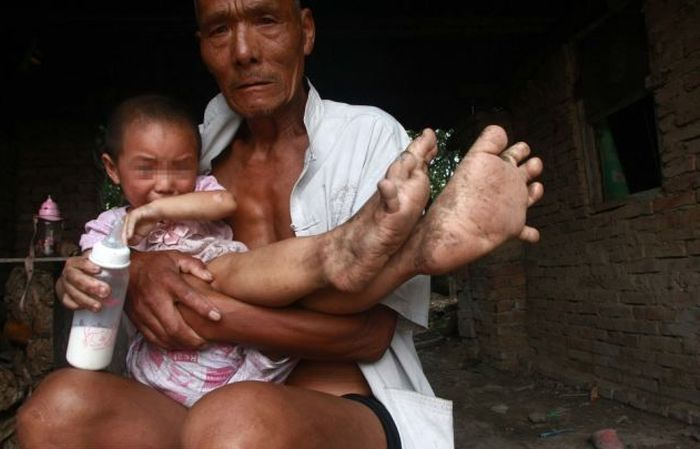Chinese Girl with Giant Feet