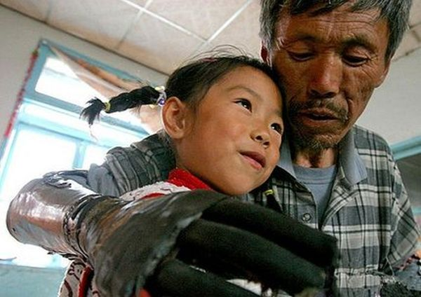 Chinese Man Builds Himself Bionic Hands