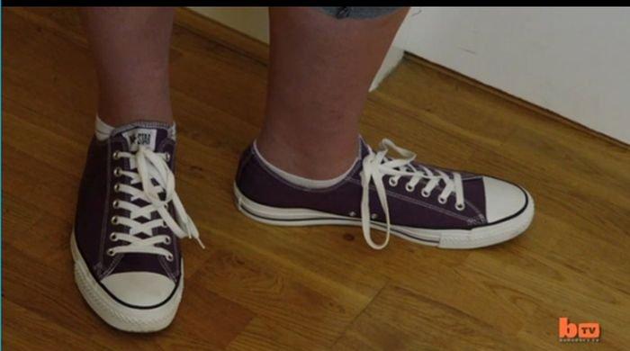 Teen Girl with Giant Feet