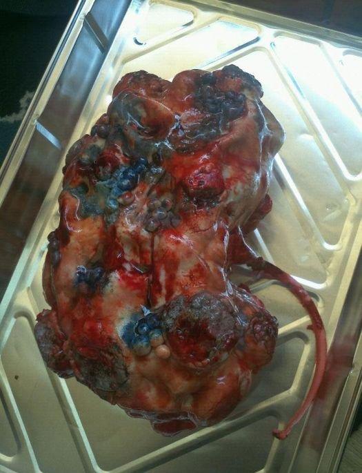 Disgusting Cakes