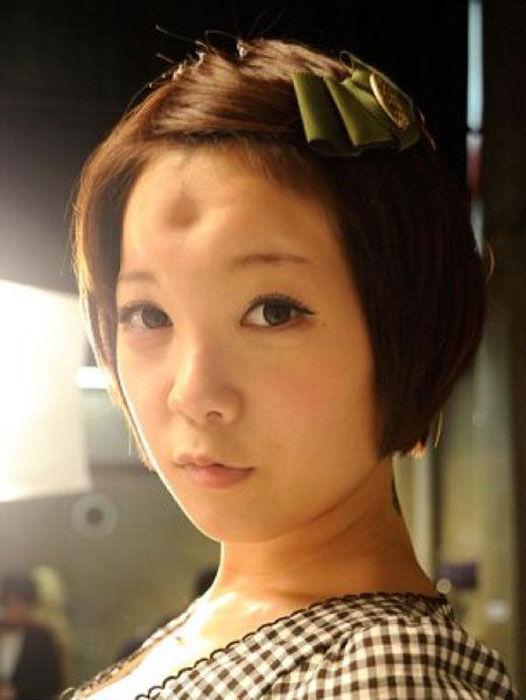 'Donut Head' Freaks from Japan