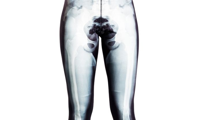 Yoga Pants with X-Ray Picture
