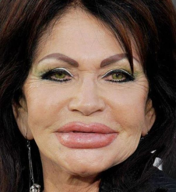 Terrible Plastic Surgery