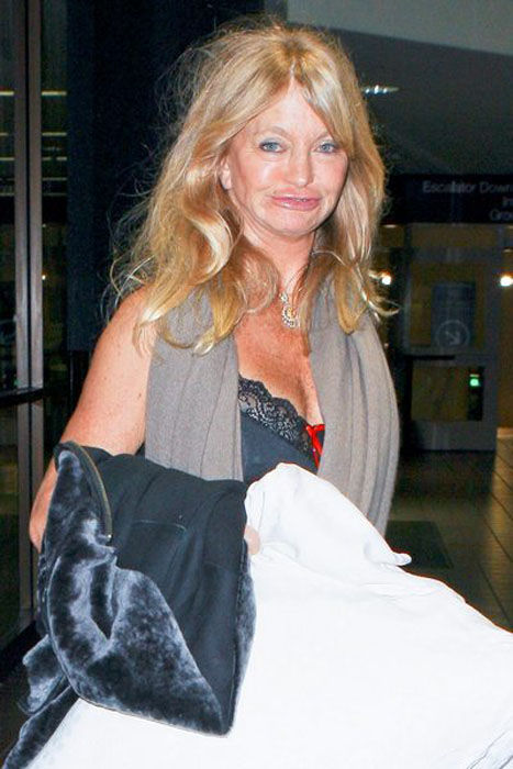 Goldie Hawn's Face Looks Bad