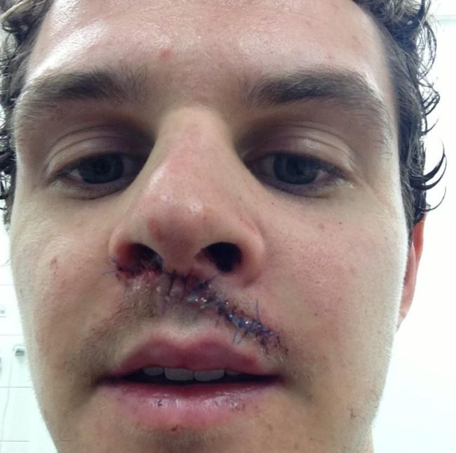 Hit by a Puck