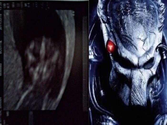 Babies in Ultrasound Who Look Like Fictional Characters
