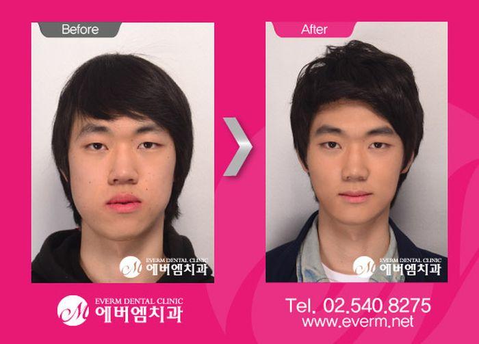 Korean Plastic Surgery