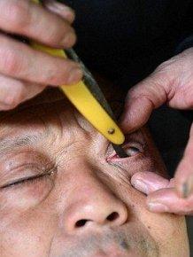 Eye Shaving