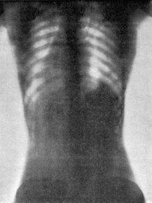 X-Rays Of Women Wearing Corsets