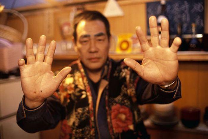 Prosthetic Pinkies for the Yakuza