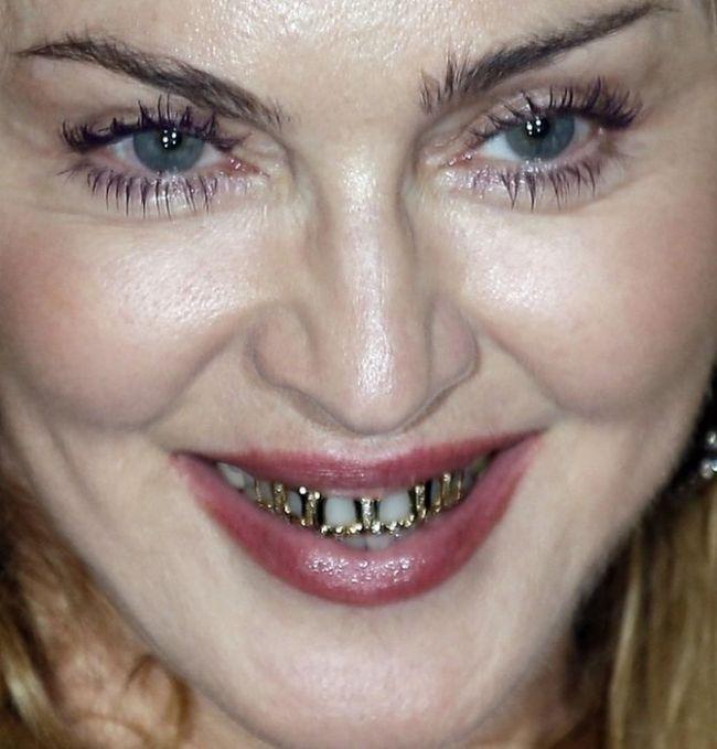 Madonna's Grillz