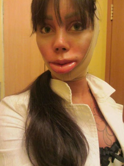 Plastic Surgery Disaster
