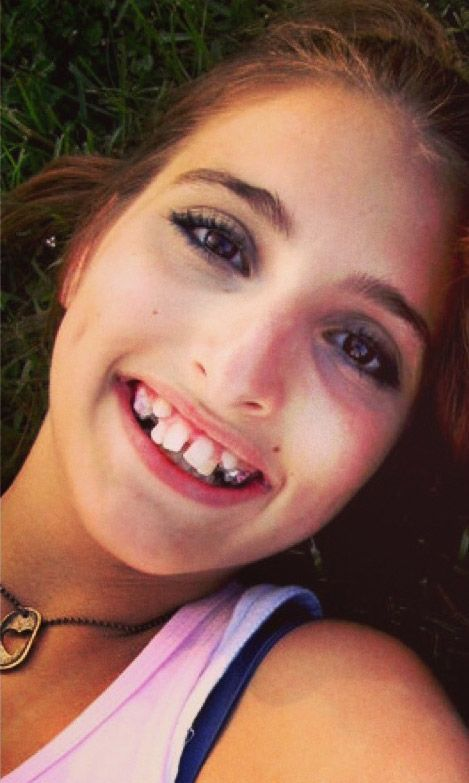 Girl Gets a New Smile