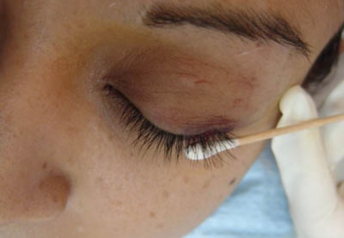 Bizarre Plastic Surgery Procedures