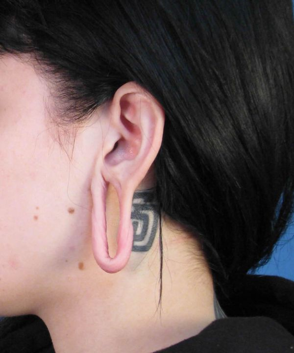 Gauged Ears Without The Gauges In