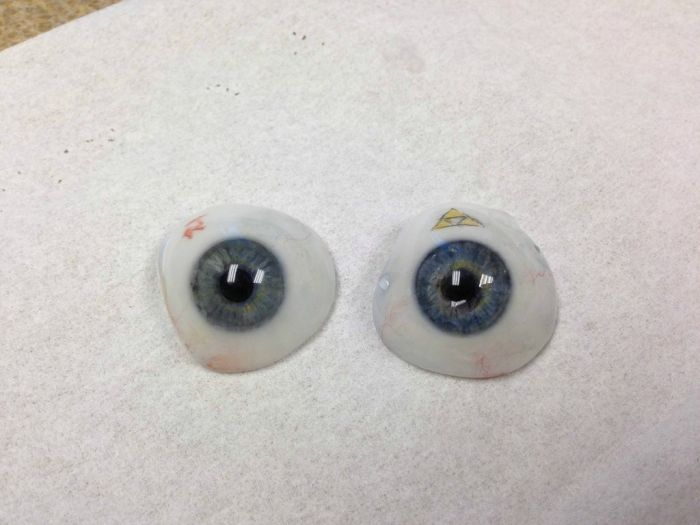 The Making of an Eye Prosthesis