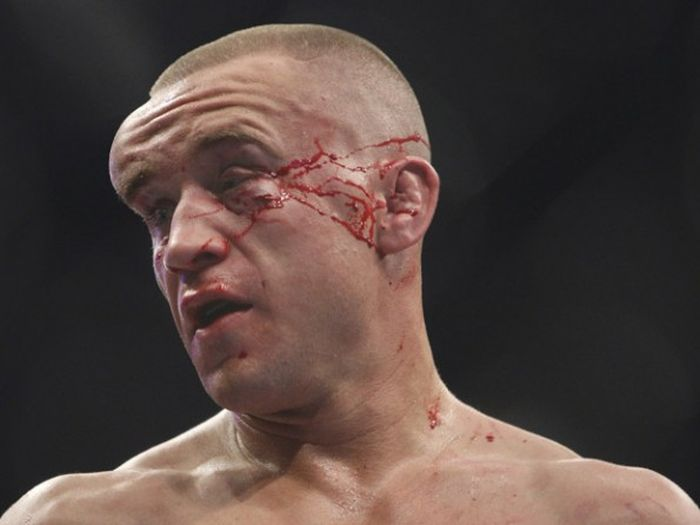 MMA Is Dangerous