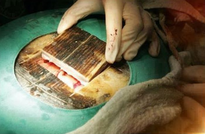 Caesarean Section for a Turtle