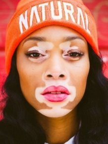 Photos of Winnie Harlow