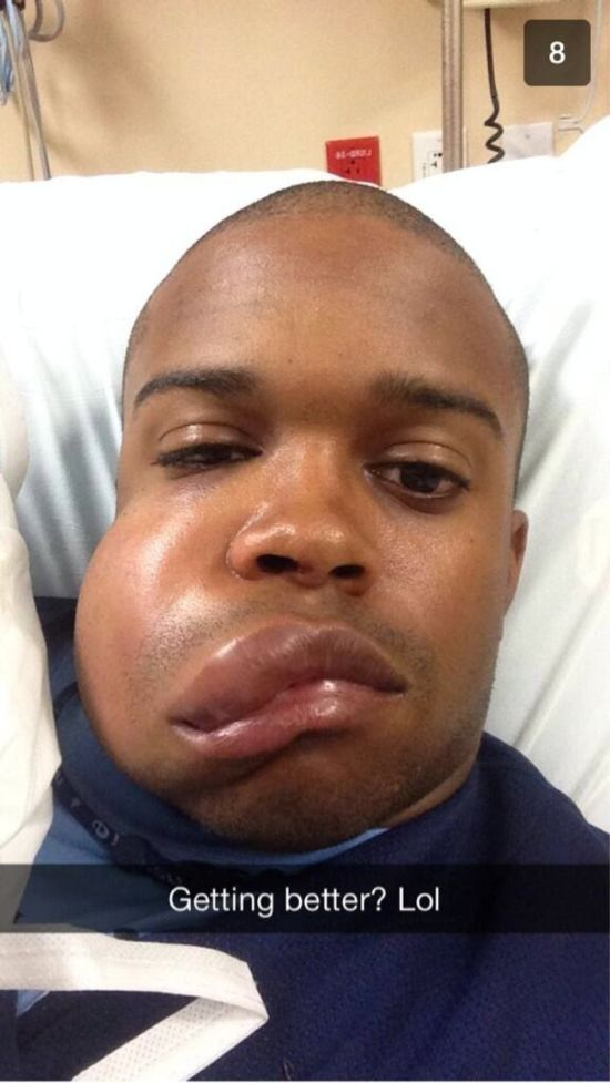 MLB Player Delino DeShields Jr Gets Hit in the Face