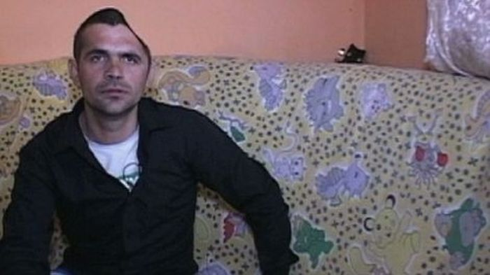 Elvis Romeo Lingurar, Man Who Lost Half of His Head