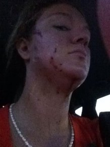 Woman Gets Roughed Up By A Rescue Cat