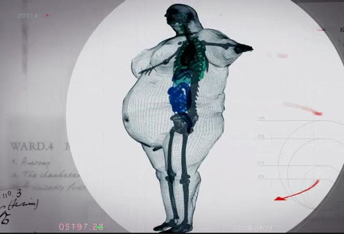 X-Ray Of A 980 Pound Man