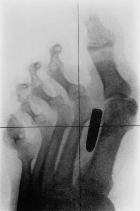 The Most Ridiculous X-Rays You'll Ever See