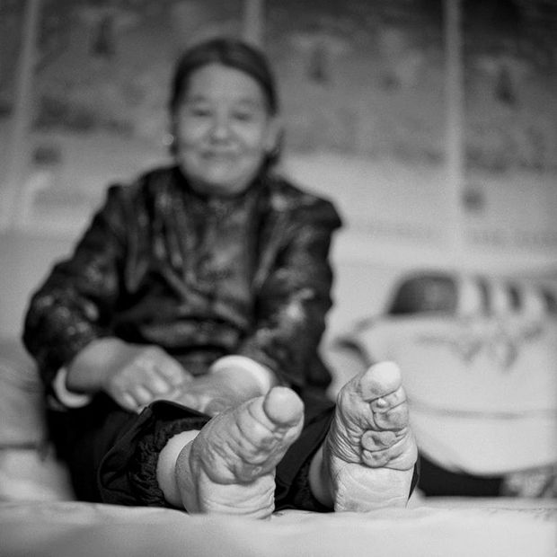 Foot Binding In China Is Coming To An End