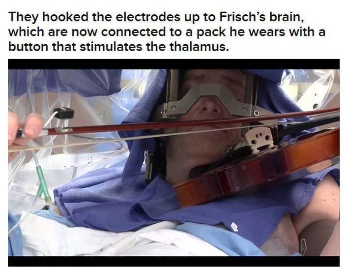 Man Plays Violin During His Own Brain Surgery