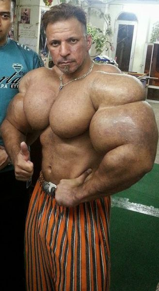 This Guy Uses Way Too Much Synthol