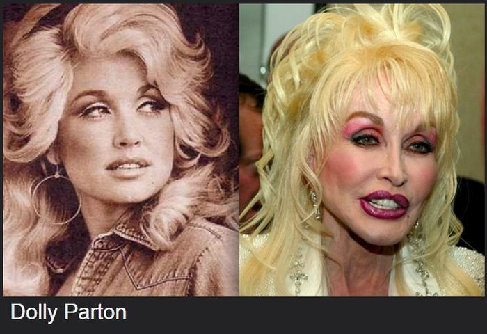 Celebrities Before And After Plastic Surgeries