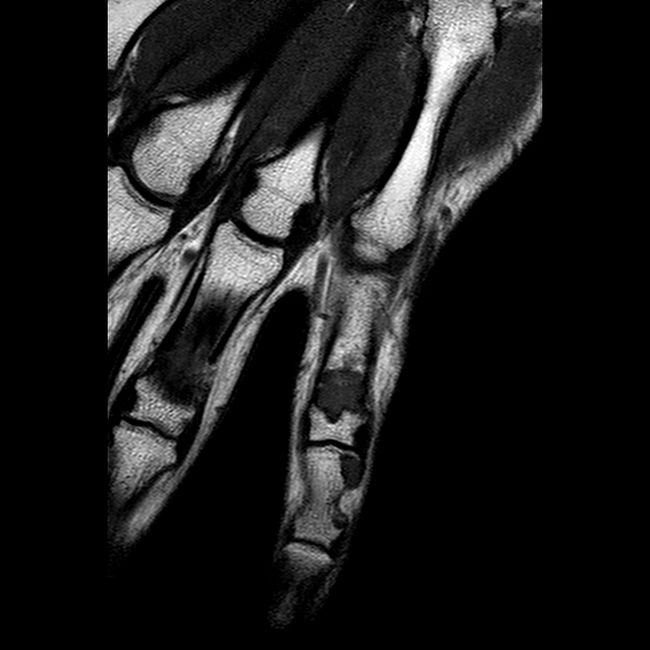 X-Ray Of A Metal Arm