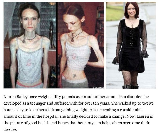 Inspiring Photos Of People Who Conquered Their Eating Disorders