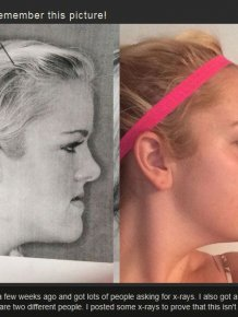 Before And After Jaw Surgery