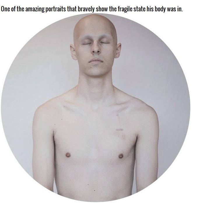 This Teen Documented His Battle With Cancer And It's Inspirational