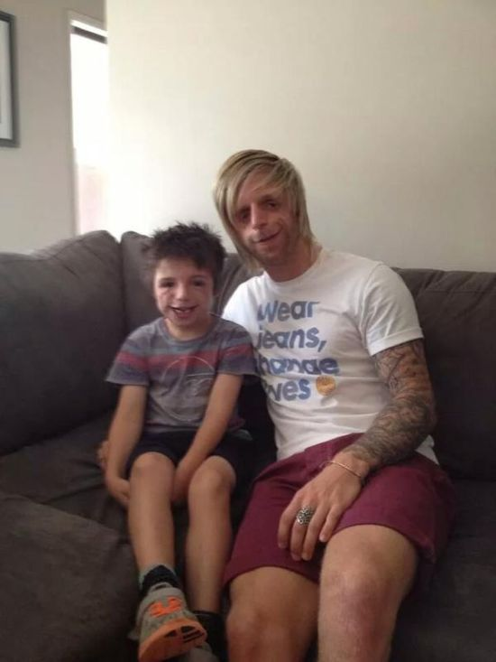 Man Flies From Yorkshire To Australia To Meet Someone With His Disorder