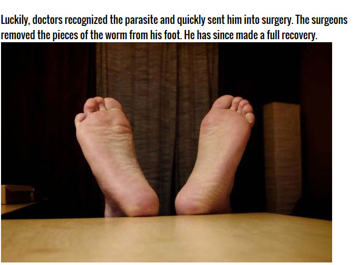Man Thought He Had An Infected Foot But It Was Much Worse