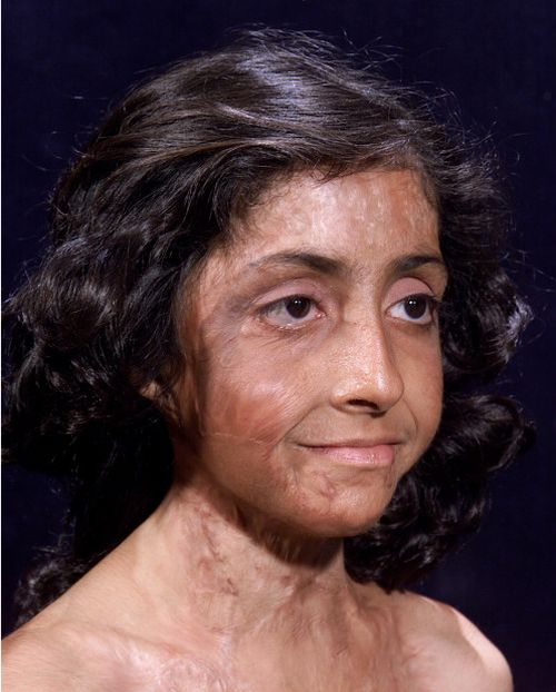 Burn Victim Gets Amazing Facial Reconstruction