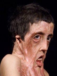 Burn Victim Gets Amazing Facial Reconstruction