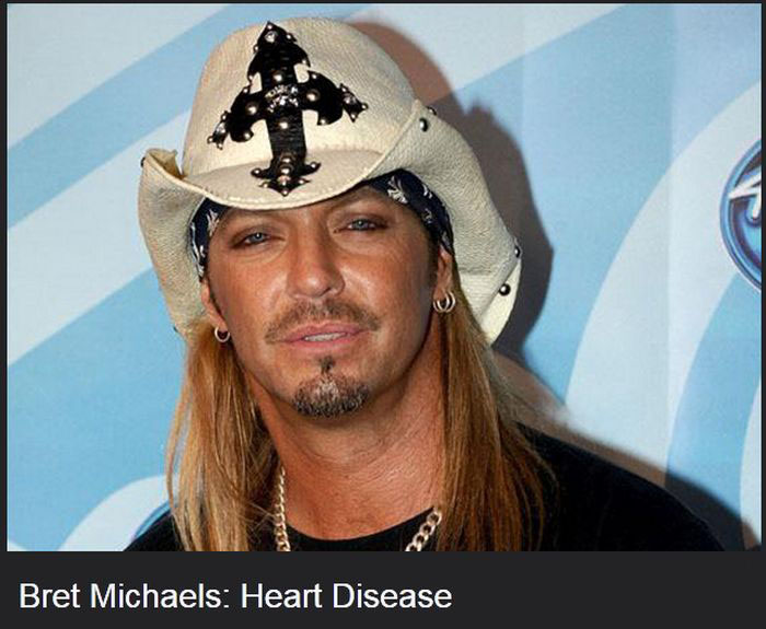 Famous Celebrities That Have Diseases