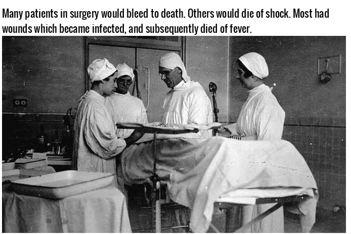 14 Bizarre Facts About Victorian Surgery