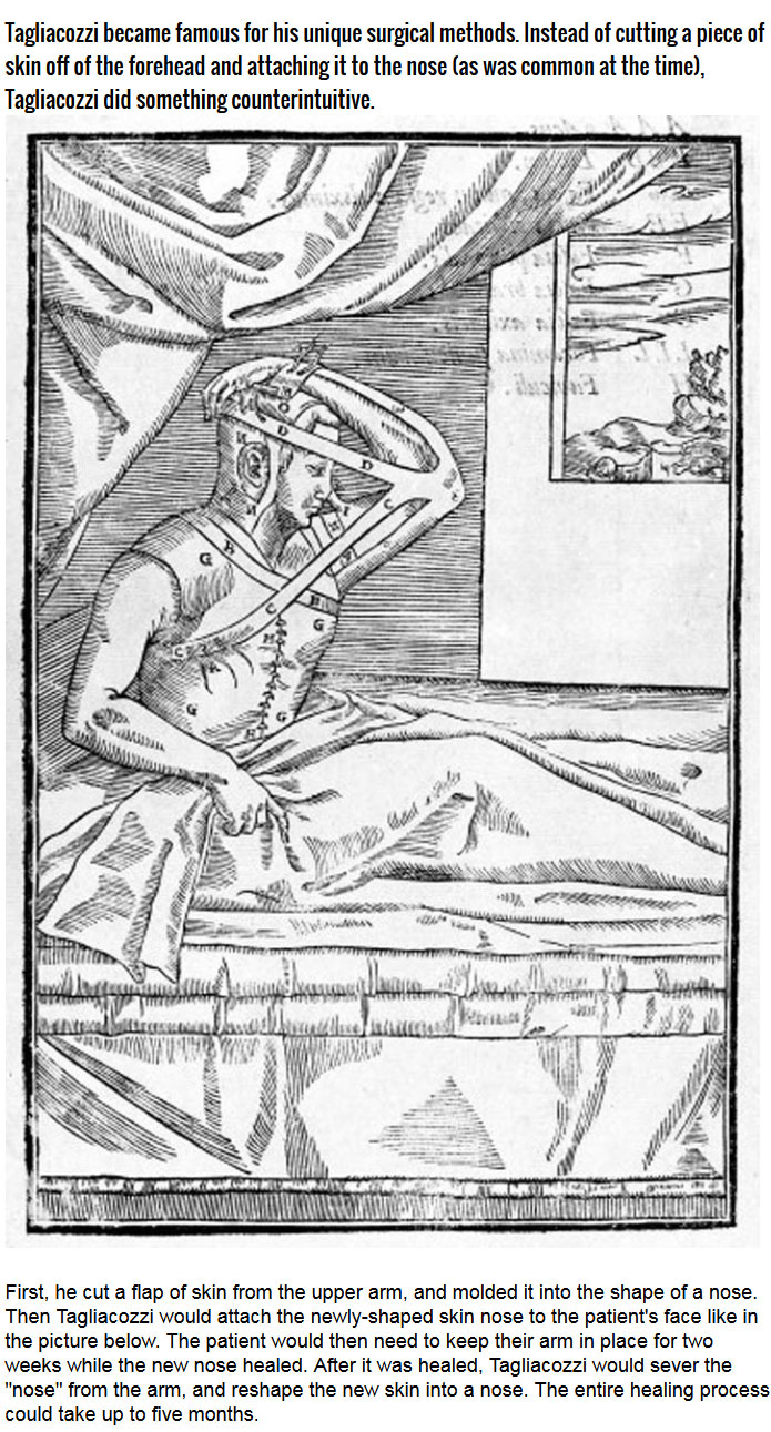 This Is How Surgeons Used To Perform Nose Jobs During The Renaissance
