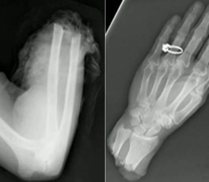 These Insane X-Rays Will Make You Wonder How That Got There