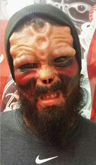 Comic Book Fan Chops Off His Nose So He Can Look Like The Red Skull