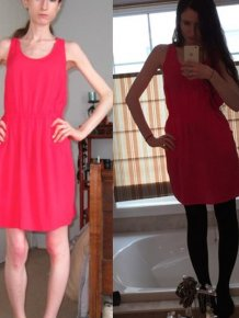 This Woman Is Looking Great After Recovering From An Eating Disorder