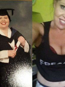 Woman Shows Off Her Body Before And After Skin Removal Surgery