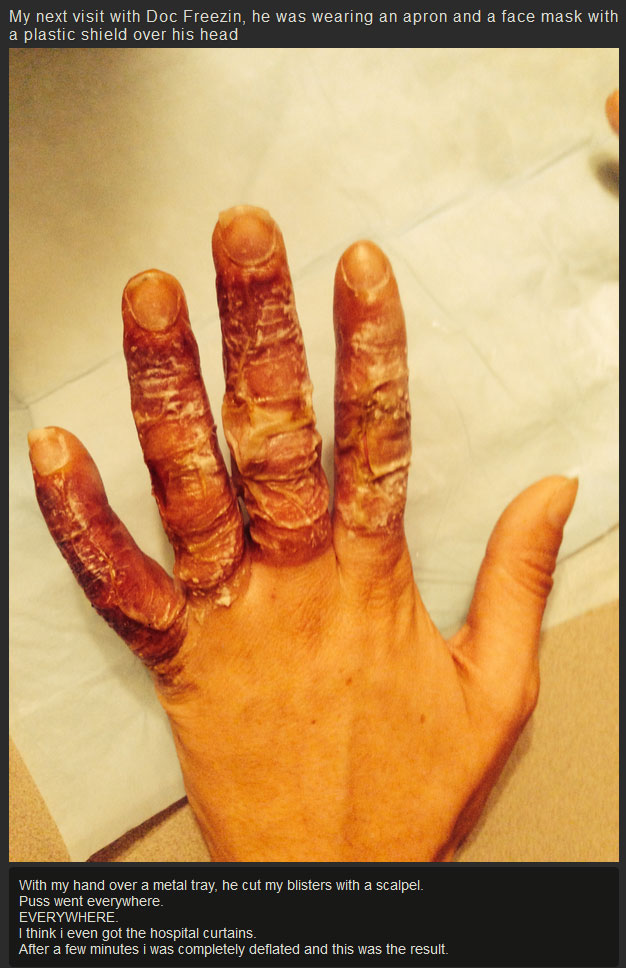 What Your Hands Look Like After They Get Frostbite