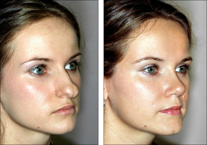 Before And After Pictures Show How A Nose Job Can Change Your Face